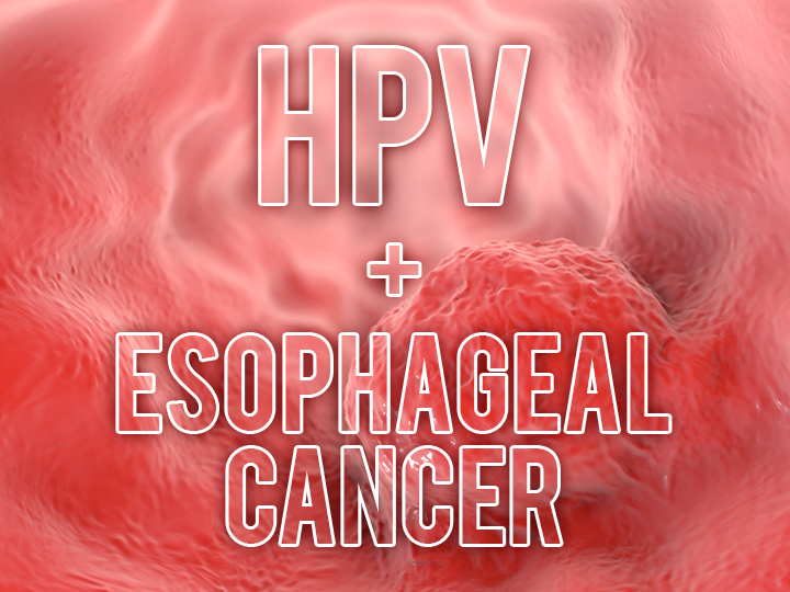 hpv in esophagus