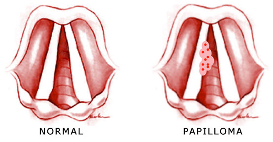laryngeal papilloma transmission hpv cancer symptoms in females