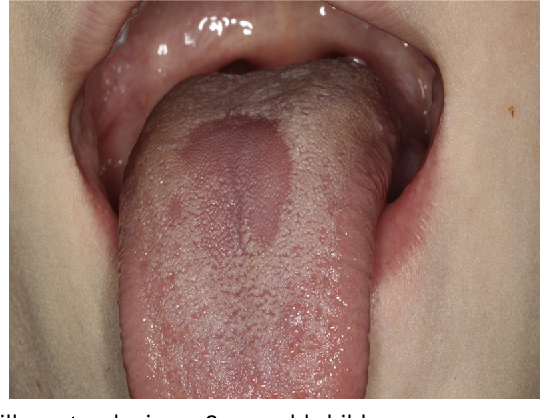 virus papiloma humano sintomas y tratamiento