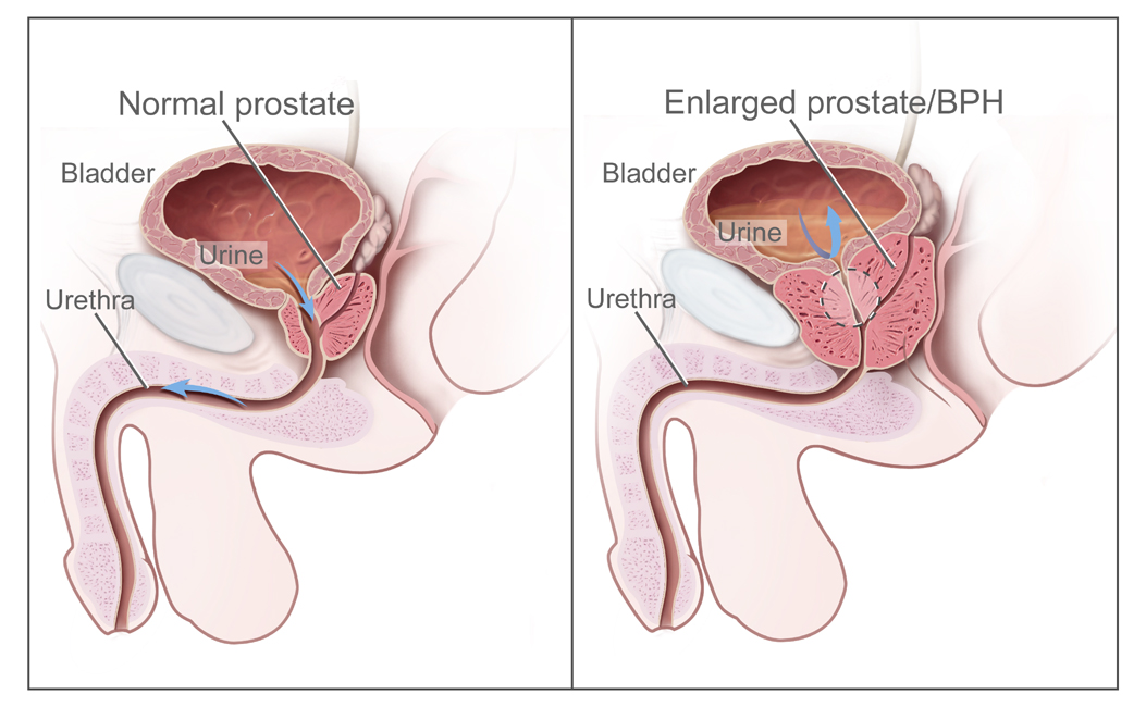 urinare cancer de prostata papillomavirus cause psychologique