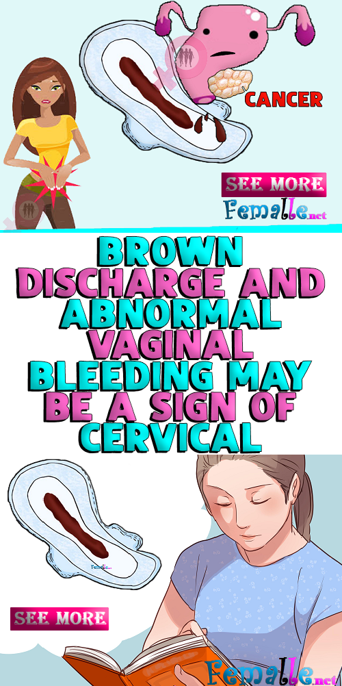 cervical cancer brown discharge