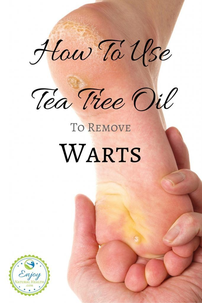 plantar wart home remedy tea tree oil hpv throat cancer epidemic