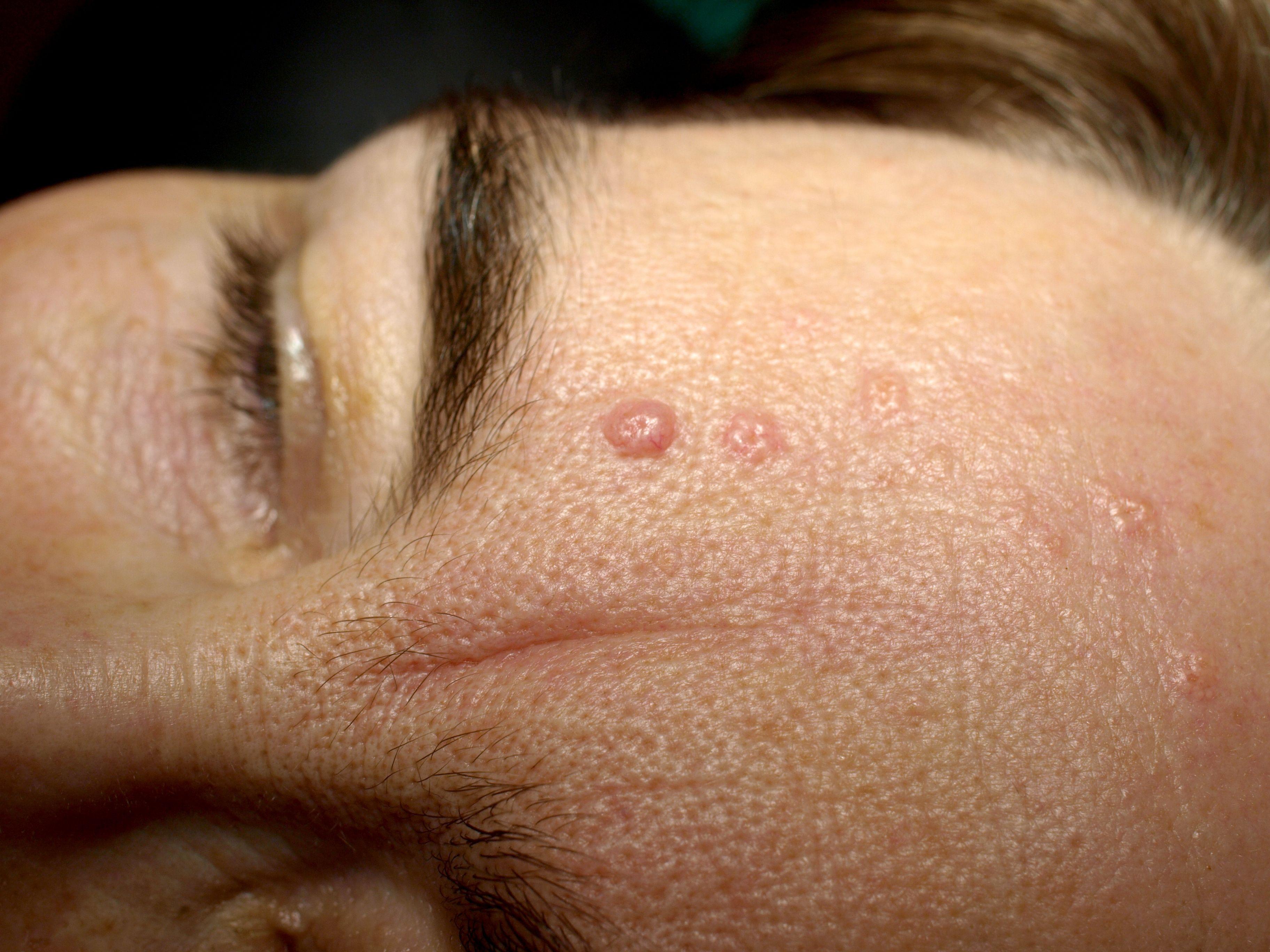 cell papilloma face human papillomavirus meaning word