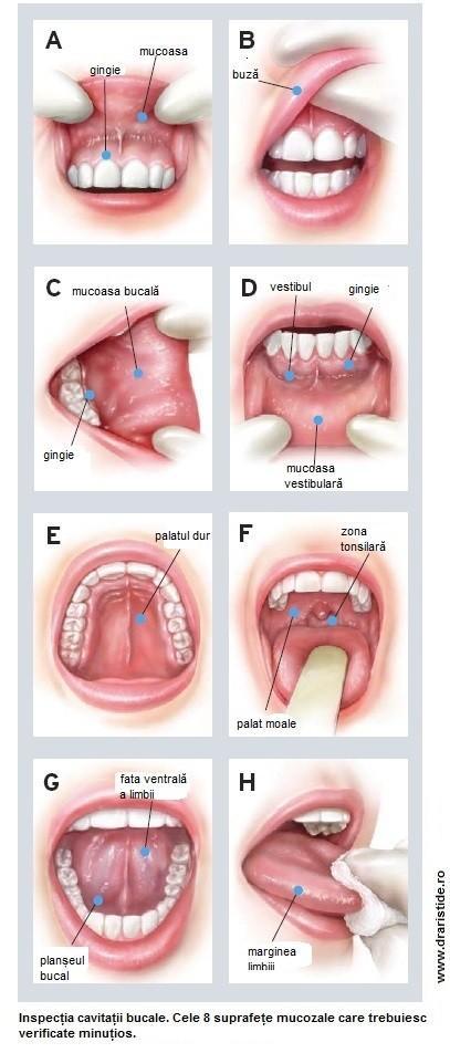 cancer in gura simptome interpretare vise paraziti intestinali