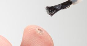 il pap test diagnostica il papilloma virus