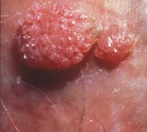 ovule propolis papillomavirus human papillomavirus on skin