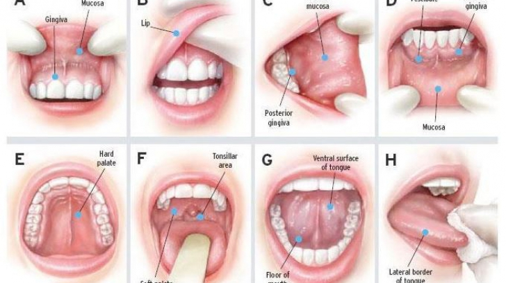 ginecologia virus papiloma humano cheloo parazitii