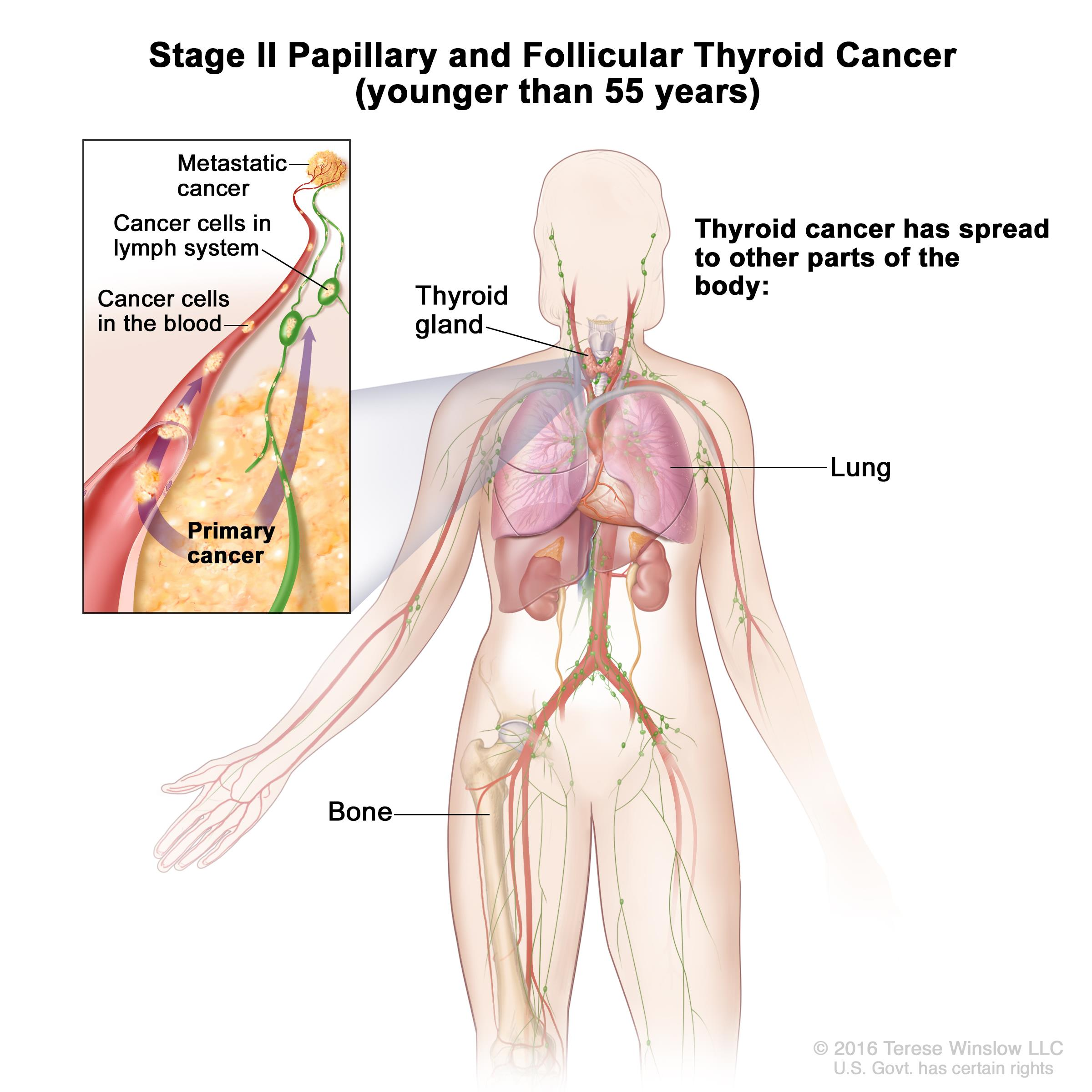 papillary thyroid cancer dying pancreatic cancer pain in back