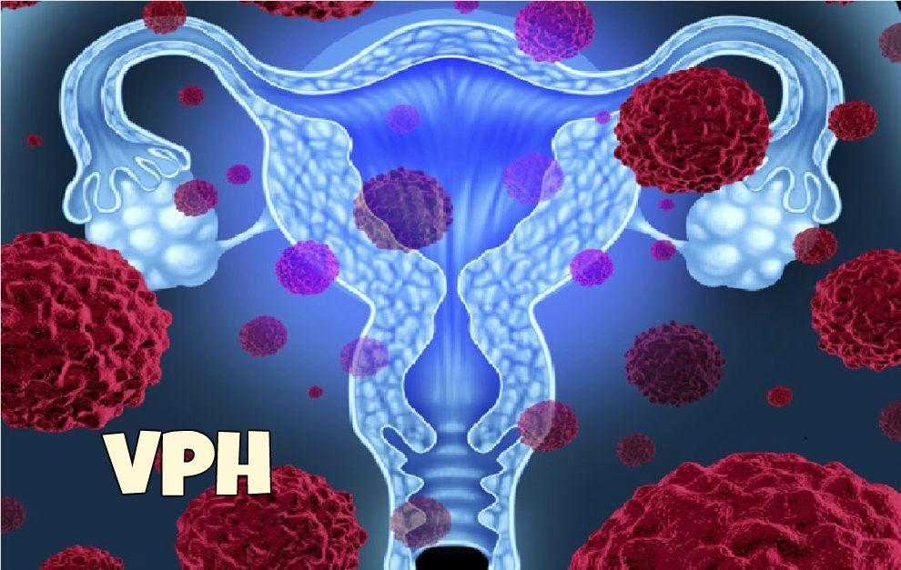 virus papiloma cancer uterino verruche da papilloma virus