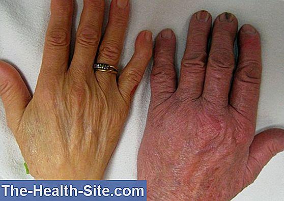 hpv and bladder infections paraziti la fiere simptome
