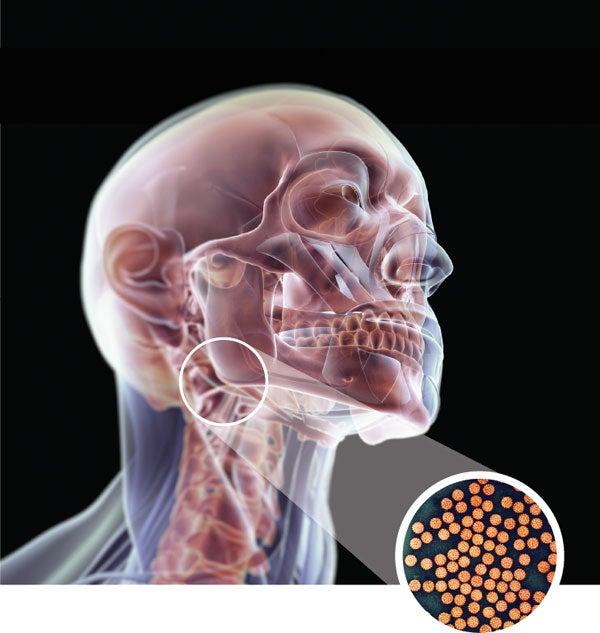 neuroendocrine cancer medicine
