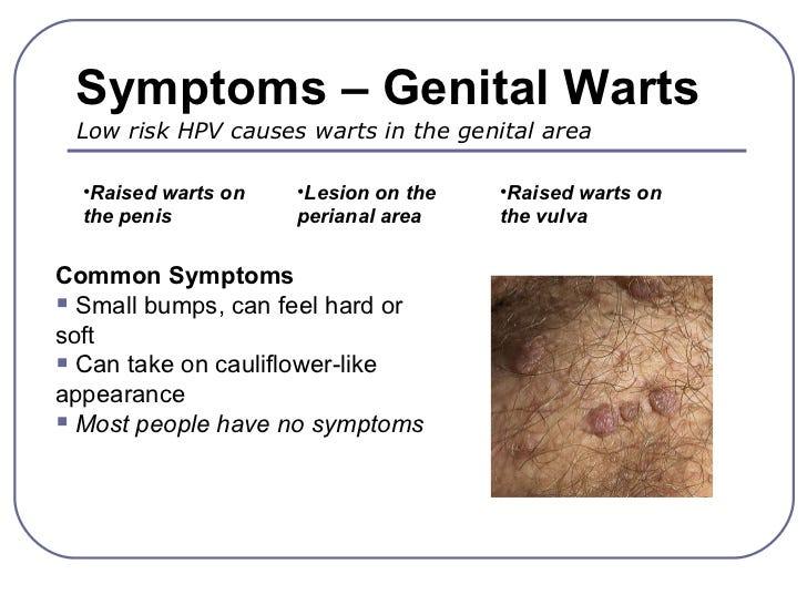 penyakit hpv pada wanita