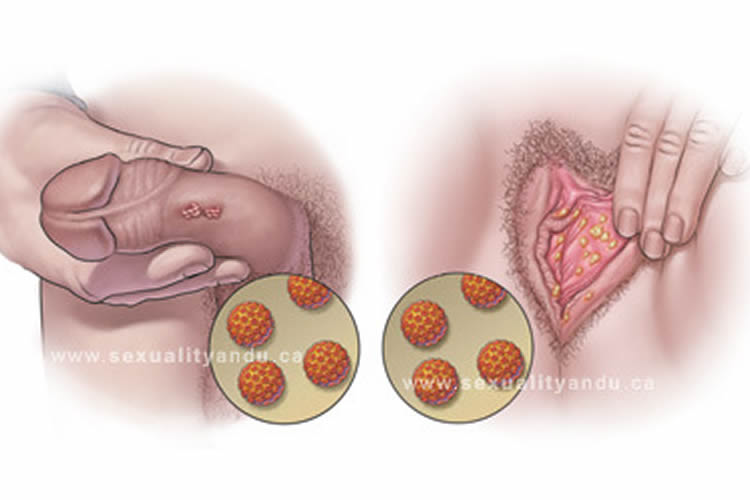 warts on your skin virus papiloma humano tipo 81