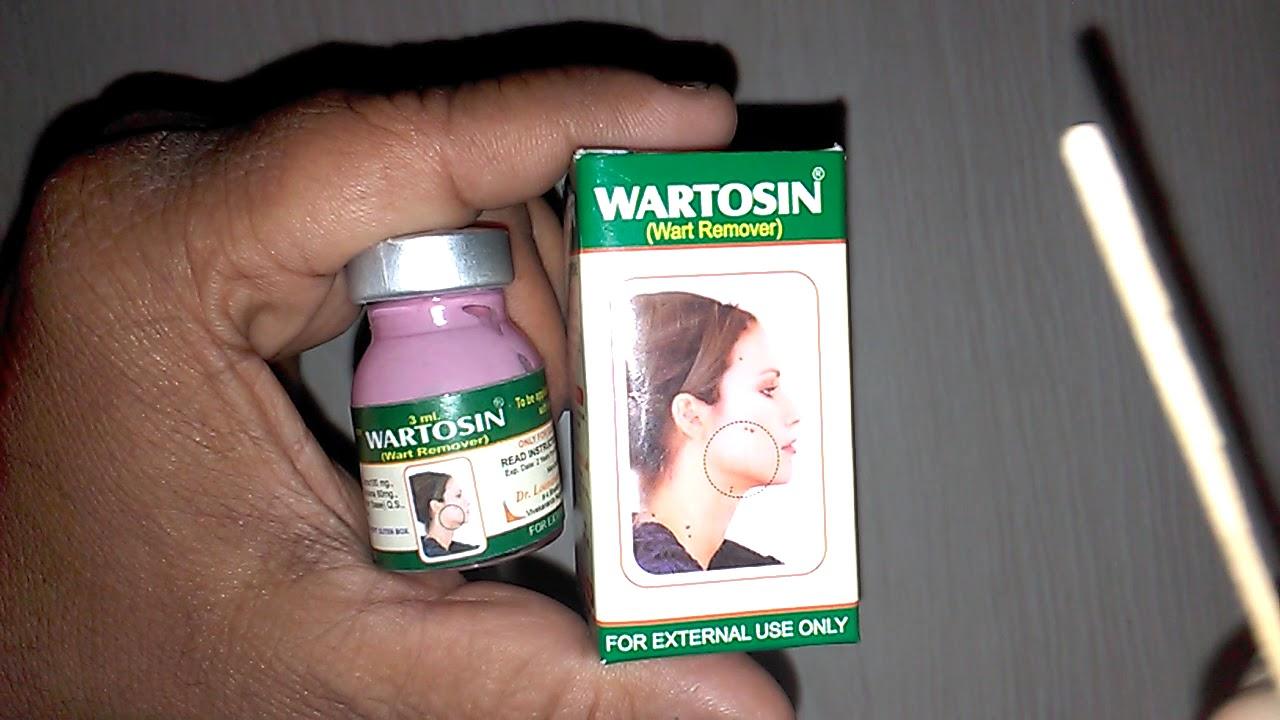 Common Warts Treatment Mallikarjun Rao MP3 Free Download