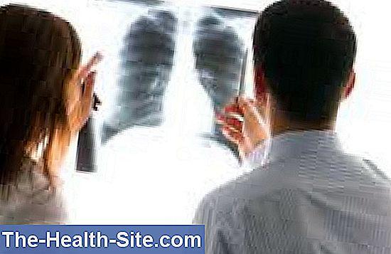 hpv virus skin cancer
