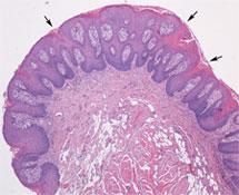 wart treatment zinc hpv verrue genitale