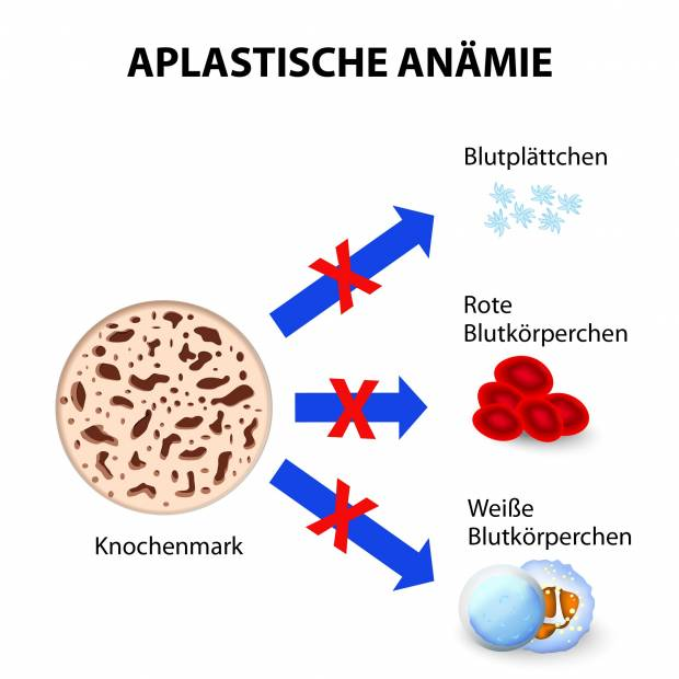 anamie klassifikation difference between hpv virus and herpes