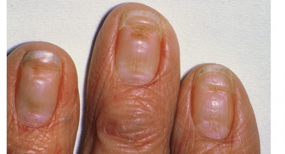 cancer laringe histologia enterobiasis treatment with vermox