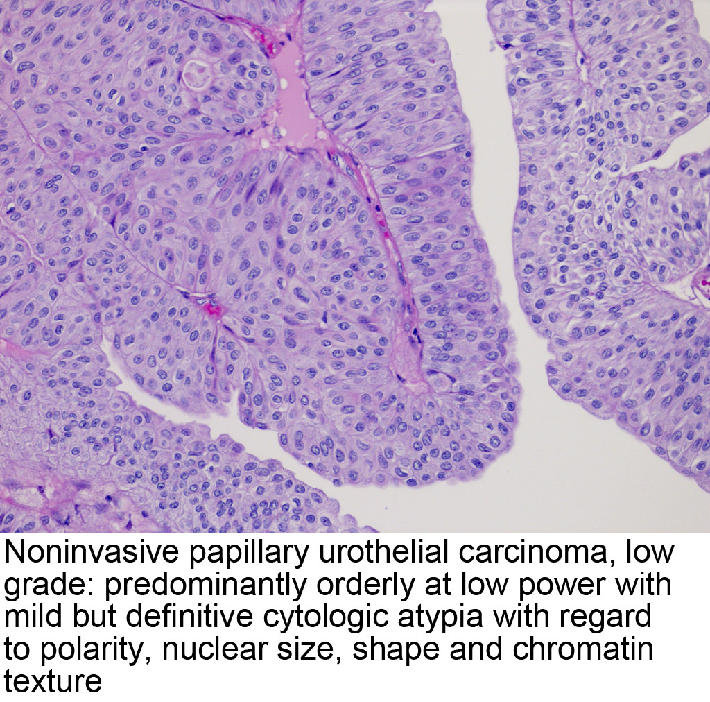inverted papillary urothelial carcinoma pathology outlines cancer plamani evolutie