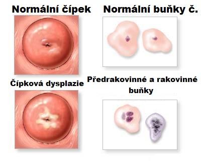 papillomavirus priznaky naut flatulenta