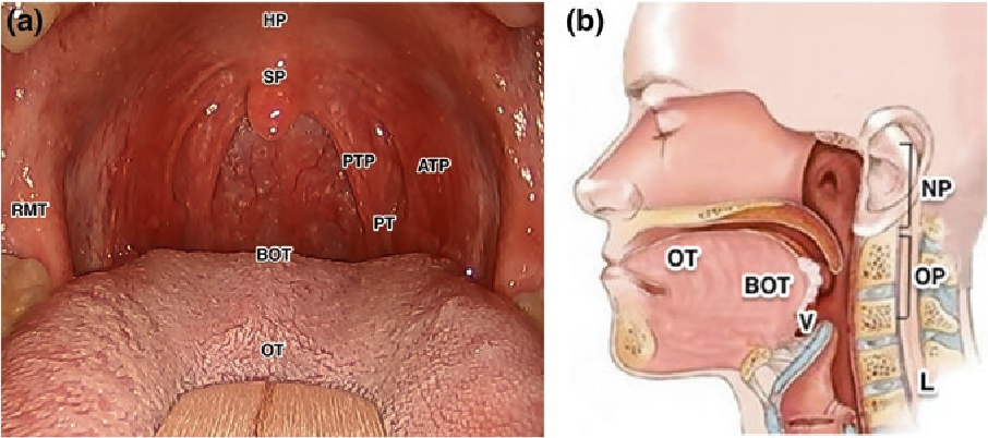hpv throat cancer base of tongue