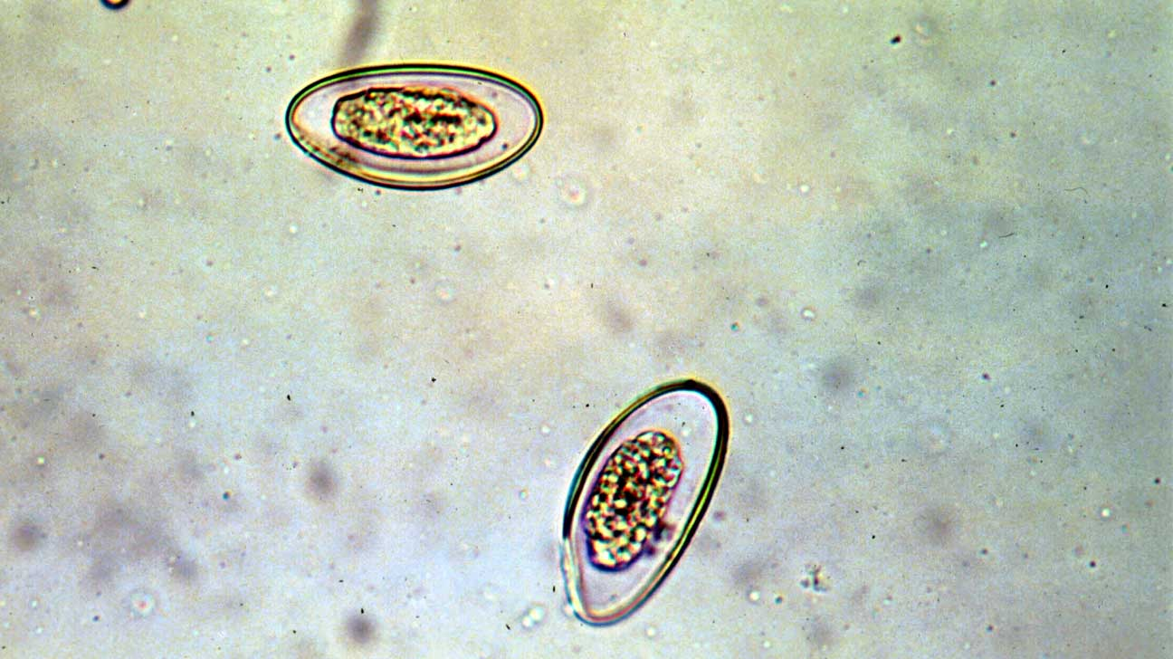 can enterobius vermicularis be found in urine