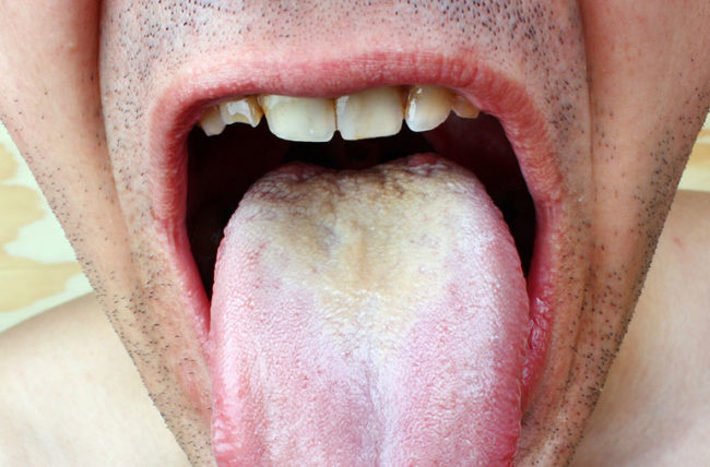 hpv burning mouth