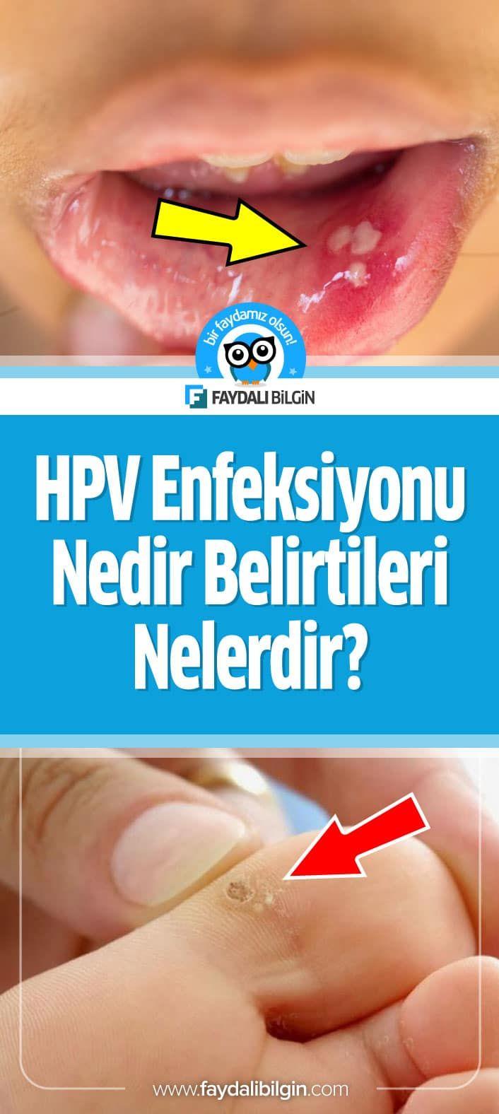 transitional cell papilloma nose hpv impfung schwangerschaft