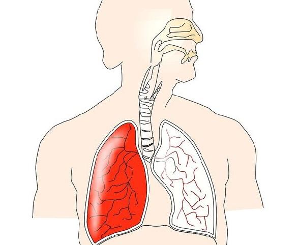 cancer la plamani la 20 de ani toxiner i mat
