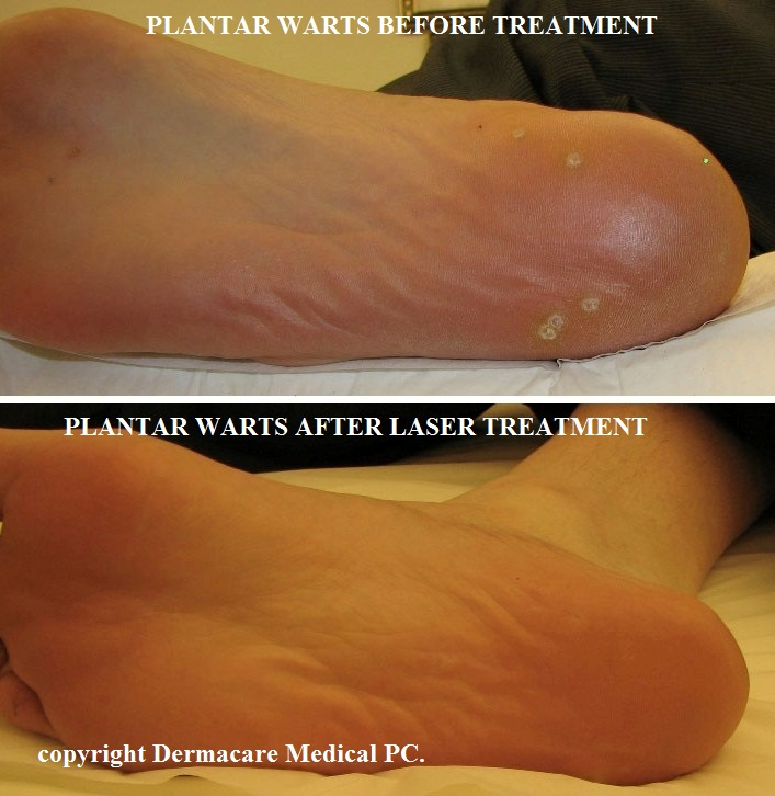 Tratamentul cu laser a varicelor nuc zuevo