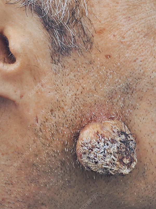 cell papilloma face