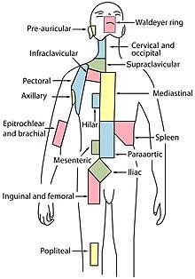 cancer maladie hodgkin