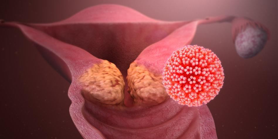 ist der hpv virus ansteckend