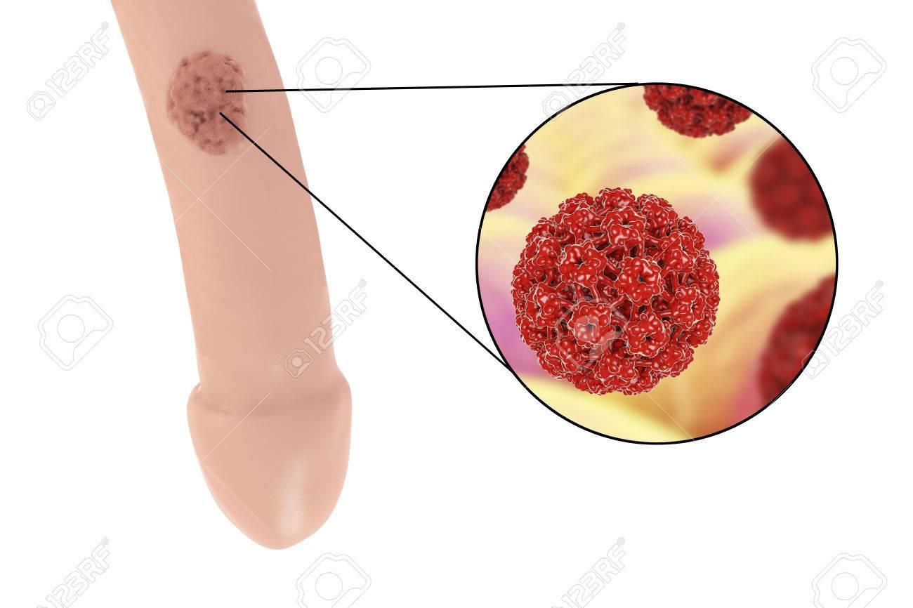 renal cancer nclex questions esame pap test e papilloma virus