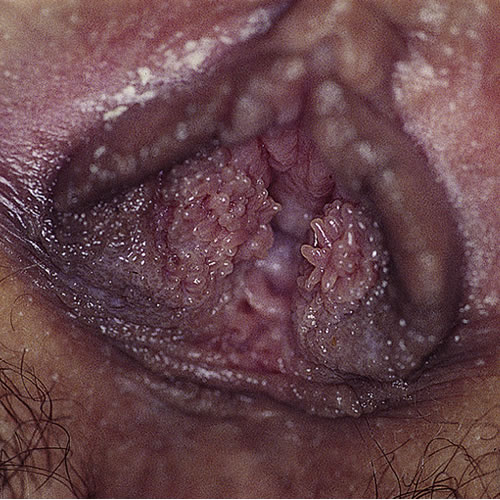 anthelmintic definition medical papilloma virus agli uomini