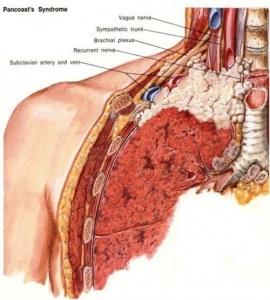 cancer pulmonar ganglioni cancer pulmonar prevenire