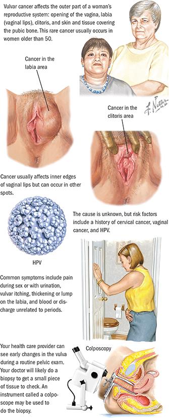 que es el cancer de cervix