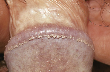 el papiloma humano se transmite por la boca