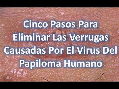 virus papiloma humano eliminar hpv and nose sores