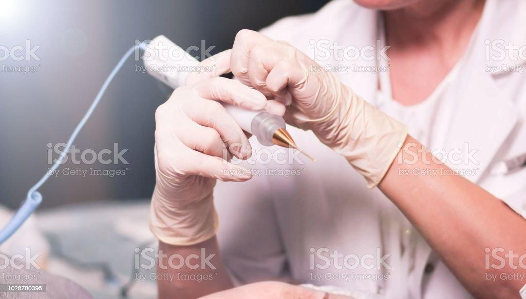 papilloma laser removal