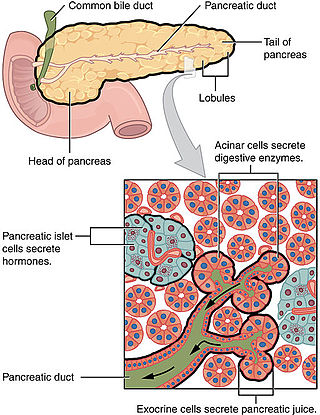 pancreatic cancer types