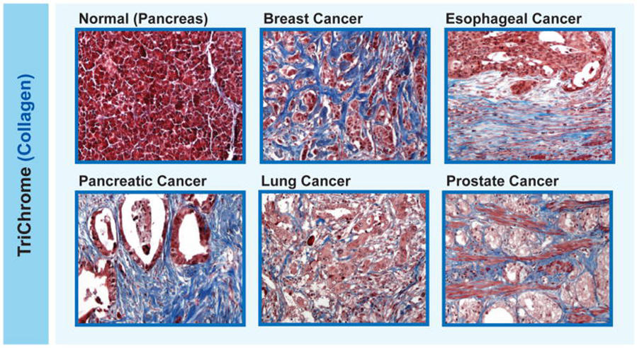 metastatic cancer of lung pancreatic cancer genetics