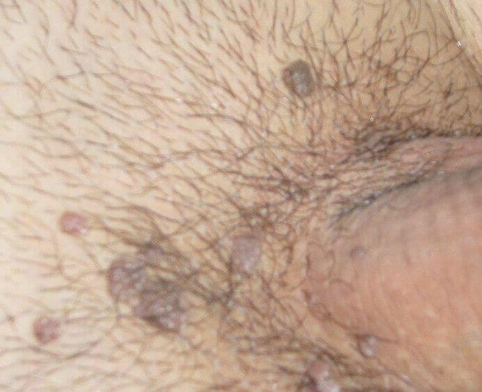urothelial papilloma ck20