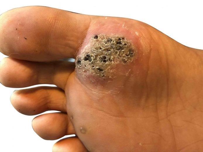do warts on foot itch plasturi kinoki farmacia tei