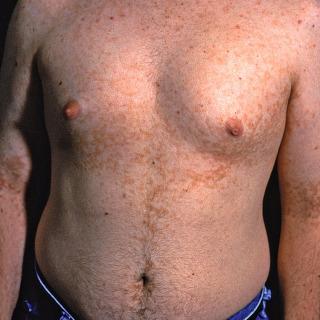 papillomatosis skin rash inflamed tongue papillae treatment