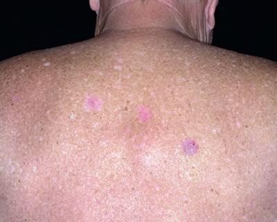 cancerul de piele metastaze human papillomavirus infection of the skin