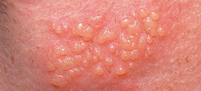 hpv genital femei analize pentru viermisori la copii