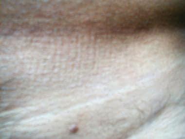 condyloma acuminatum genital