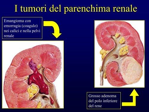 papilloma pelvi renale cura detoxifiere naturala