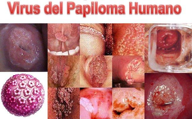 aggressive cancer in lymph nodes papiloma krema za muskarce